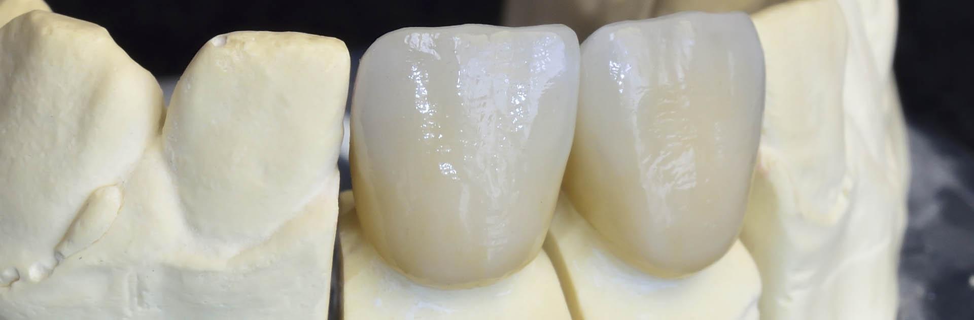 zubní protéza